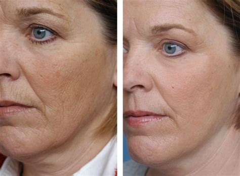 Galerry co2 fractional laser resurfacing recovery