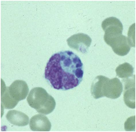 symptoms   anaplasmosis   cdc
