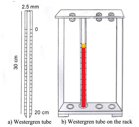 sed rate westergren erythrocyte sedimentation rate esr principle methods