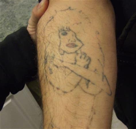 tattoo removal steps removal removal removal