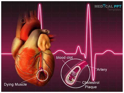 cardiovascular powerpoint template free cancer powerpoint templates by medicalppt on deviantart