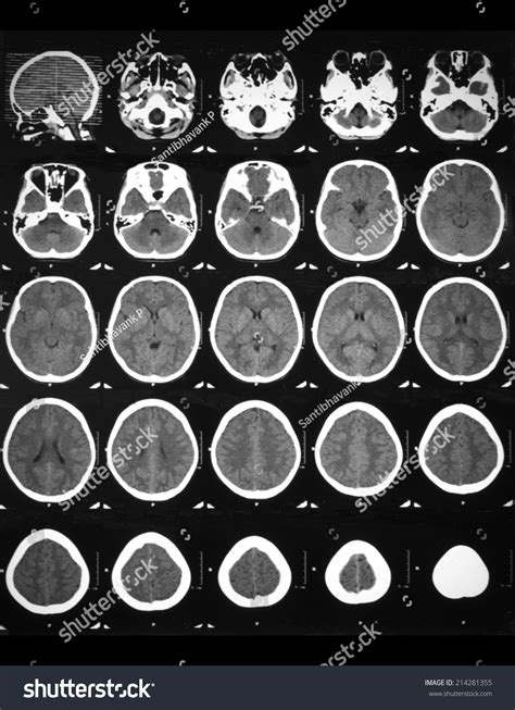 Ct Search Ct Brain Scan With Non Contrast Of A 12 Years Who Has Fever With Drowsiness
