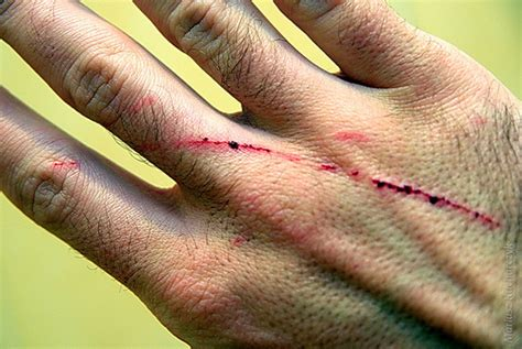 about cats cat scratch fever symptoms