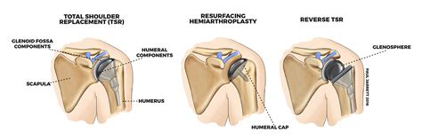 replacement shoulder information shoulder arthritis murdoch orthopaedic clinic