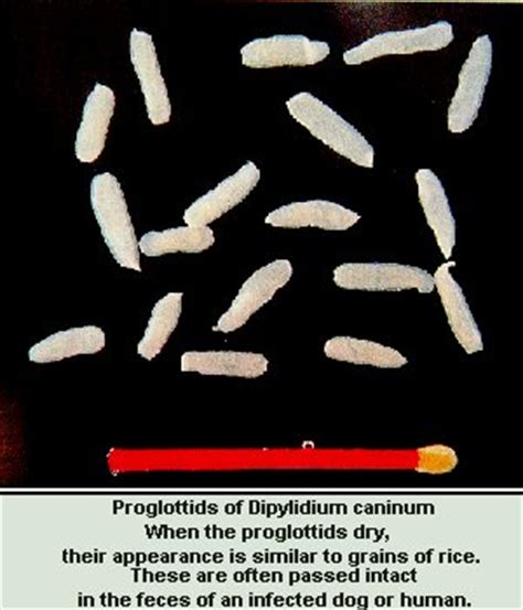 White Worms In Stool Human by Quot Rice Quot In The Stool Gt Parasites Faq