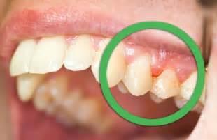 gums pulling away from teeth home remedy des rem 232 des naturels pour les gencives et les dents