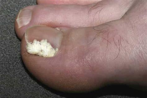 White Toenail Fungus Pictures toenail fungus pictures causes symptoms get rid cure