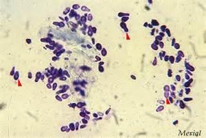 dermatite 224 malassezia otites 224 malassezia mycoses