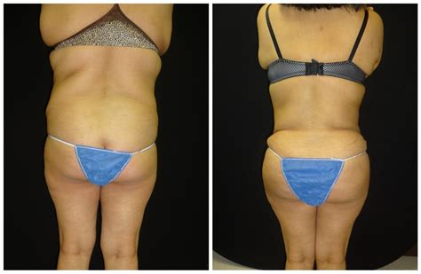 vigina brazilian body procedures before and after photos dr bitar