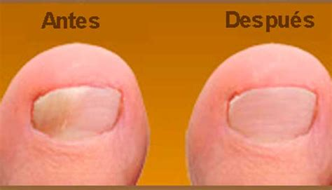 Imagenes Uñas Con Hongos | 7 remedios naturales para eliminar los hongos en las u 241 as