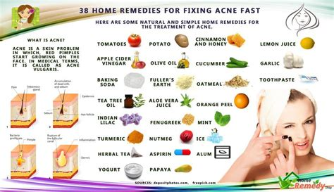 38 home remedies for fixing acne fast home remedies
