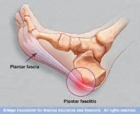 plantar fasciitis the source makes learning about