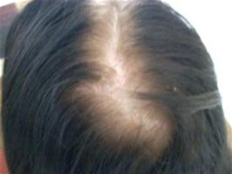 women balding on crown dr doris day s tips for treating thinning hair and my