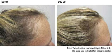 viviscal before and after hair length afro viviscal maximum strength hair growth supplements 1 month