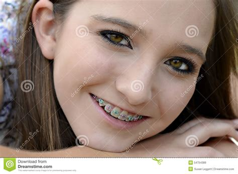 young teen girl face with braces pretty teen with braces stock photo image 54754389
