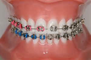 braces colors pin by tremblay karolann on braces color ideas