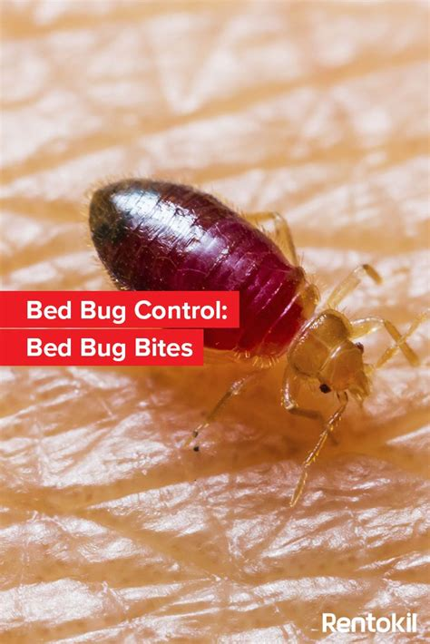 How To Treat Bed Bug Bites One Of The Most Common Signs Of A Bed Bug Problem Is Bed