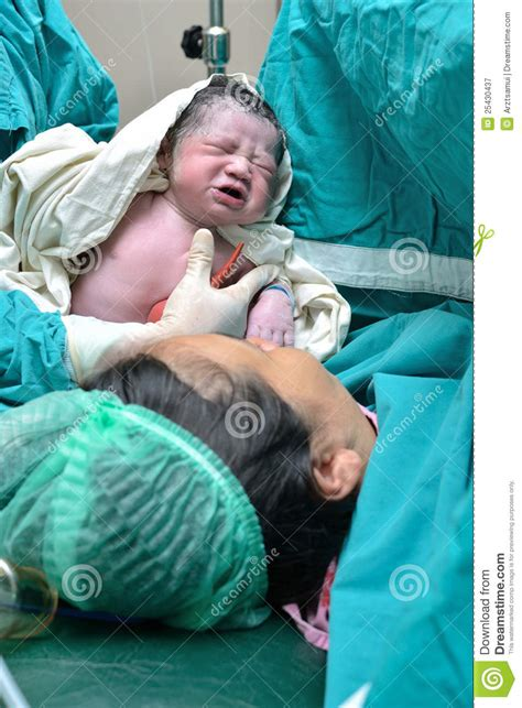 c section time cesarean section royalty free stock photography image