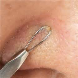 Sabun Muka Penghilang Komedo jerawat acne yang menjengkelkan hmm andriepratama