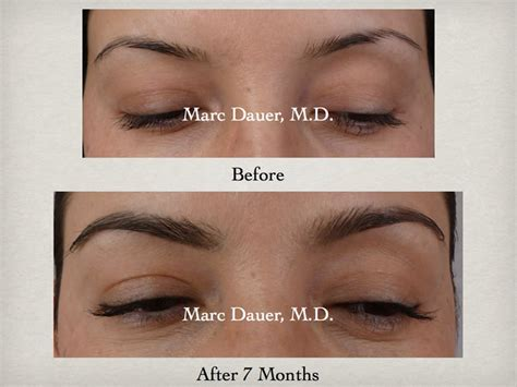 eyebrow transplant spiky hairs hair restoration surgery hair loss treatment hair