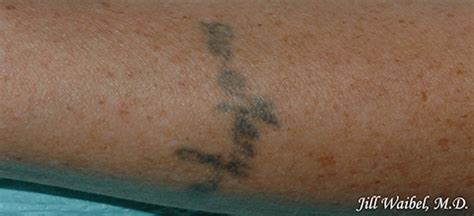 miami tattoo removal removal before and after pictures in miami fl