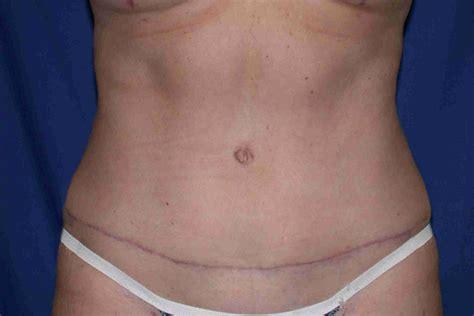 gallery abdominoplasty