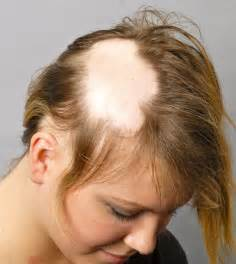 best haircuts for with alopecia what it feels like to have alopecia