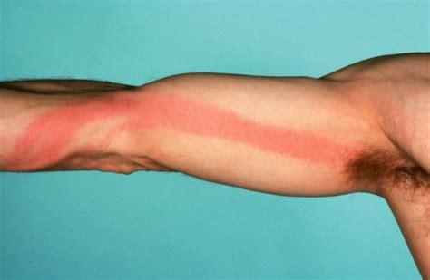 Bilder Arm by Erysipelas Wondroos Belroos Patientenfolder