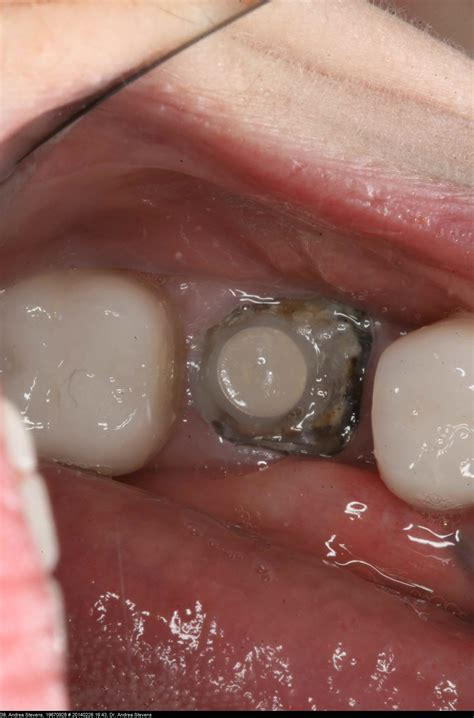 broken tooth should a tooth that is broken to the gumline be fixed dr andrea