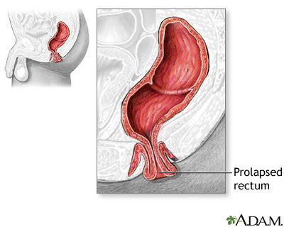 prolapse diagram rectal prolapse medlineplus encyclopedia image