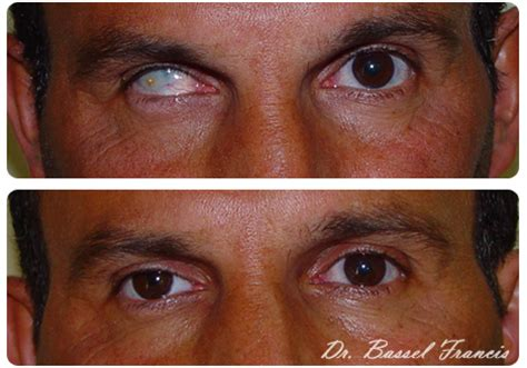 eye surgery before and after | eye reconstruction in