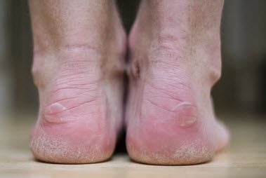 the biomechanics of heel blisters blister prevention - Boat Shoes Hurt Back Of Foot