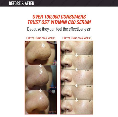 Serum Vitamin C Malaysia c20 original vitamin c20 serum 30ml 11street