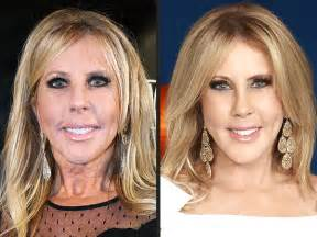 Real housewives of orange county vicki gunvalson post plastic surgery