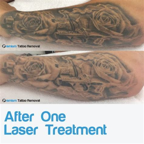laser tattoo removal process pictures before and after photos laser removal premium