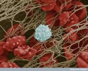 platelet intelligence