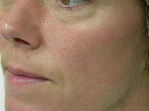 rosacea assurance skin laser amp aesthetics