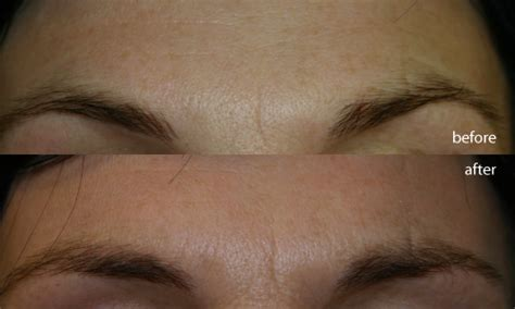coverage for fine line on forehead tried tested jessners peel at wpr beauty spa cosmetic