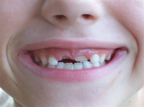 losing teeth toddler and child tooth care articles