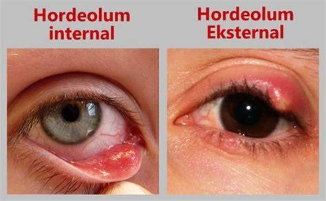 Obat Mata Bintitan Tetes bintitan pada mata tidak terasa gatal alodokter