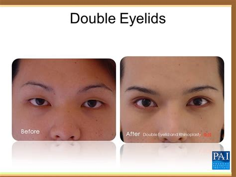 double eyelid people born without eyelids www pixshark com images