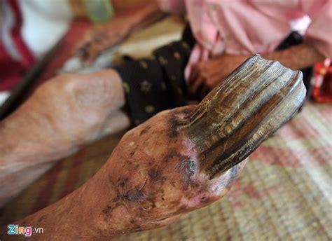 cutaneous horn photos 97 year with 20cm cutaneous horn on knee news vietnamnet