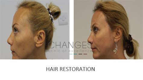 hair loss hair transplant and hair restoration advice hair transplants and hair restoration surgery at changes
