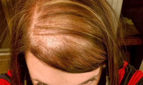Womens Haircuts For Hairloss | female hair loss is on the rise top and trend hairstyle