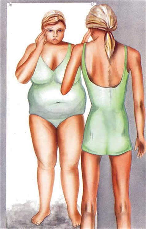 Is Anorexic by Anorexia
