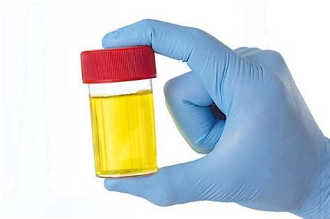 test urine understanding urine test results med scoop daily