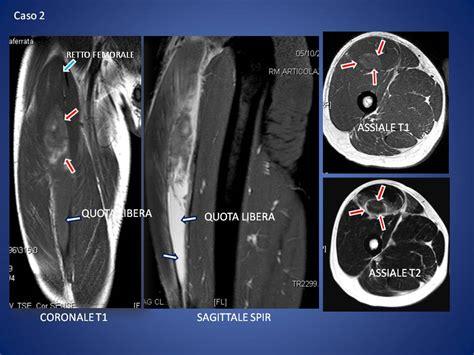 ematoma interno le lesioni muscolari radiologia ortopedica