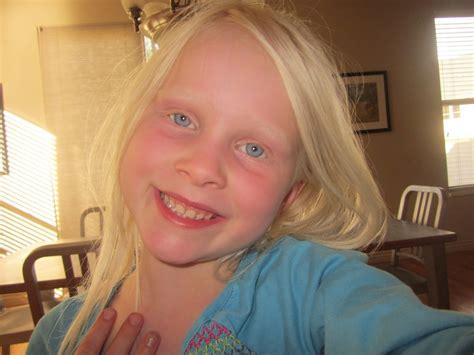 albino hairy pubic hair can albino people dye their hair www pixshark com