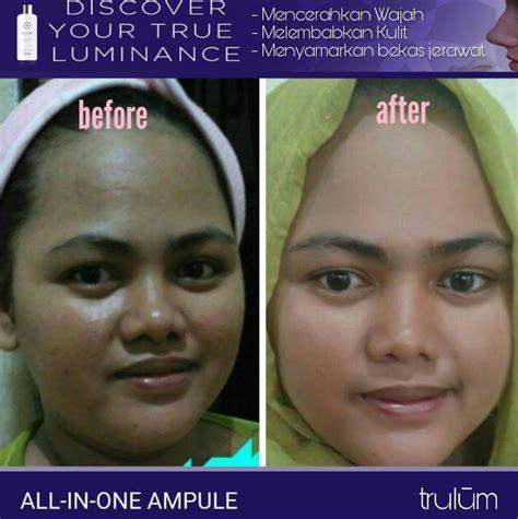 trulum skincare moisturizer  kulit berminyak contact
