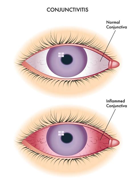 my eye is red watery and sensitive to light conjunctivitis nursing management rnpedia